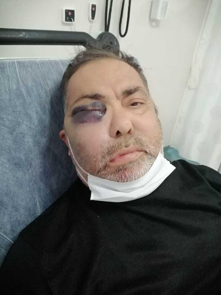 Darp edilen yüzde 90 engelli vatandaş olayında tutuklama kararı