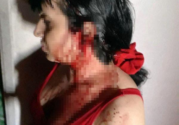 Beyzbol sopasıyla dövülen trans birey, ağır yaralandı