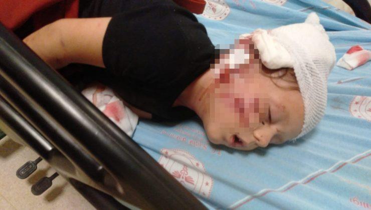 Antalya'da köpeğin saldırısına uğrayan 3,5 yaşındaki çocuk, ölümden döndü
